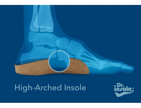 Custom Made Orthotics for High Arches