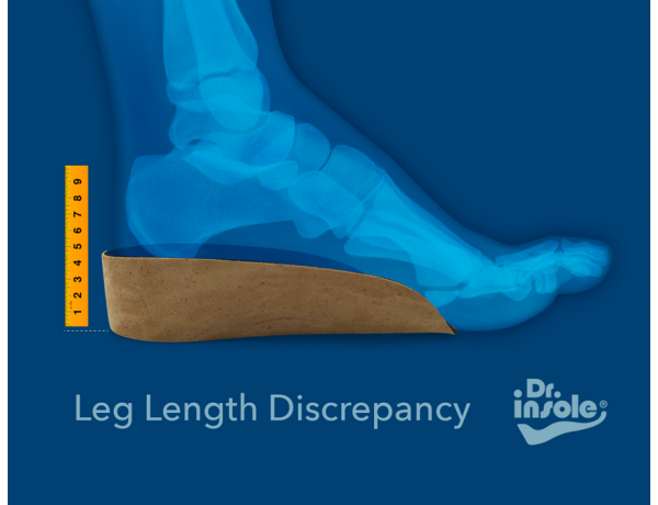 Heel Raises for Leg Length Discrepancy
