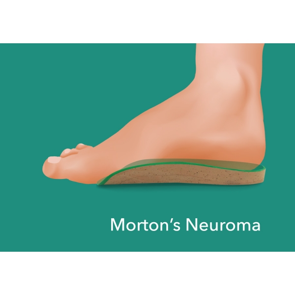 Shoe Insoles For Morton S Neuroma