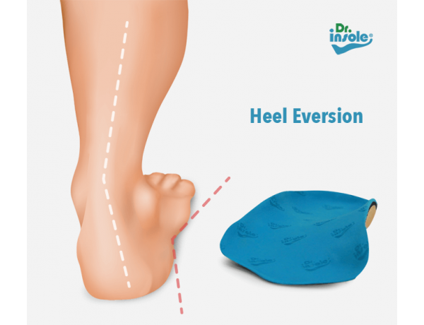 Heel Eversion Orthotic Insoles