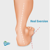 heel eversion