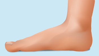 flat feet in adults