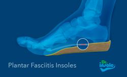plantar fasciitis insoles